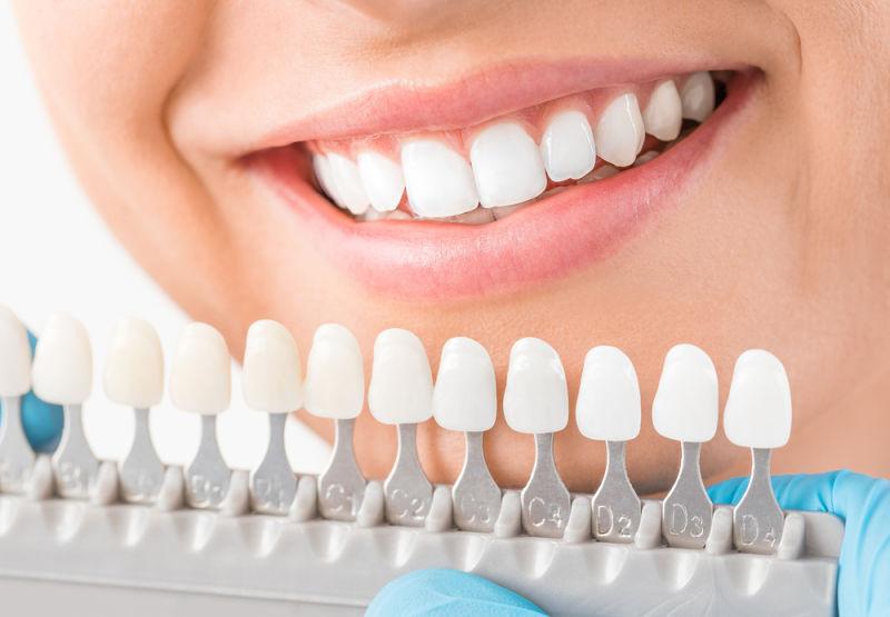 cosmetic dentist leesburg | dental veneers