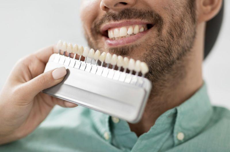 Best dentist in Leesburg | dental veneers